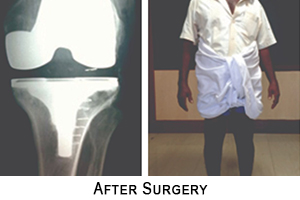 Knee Replacement Surgery in Coimbatore