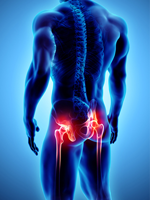 Hip Replacement Surgery in coimbatore